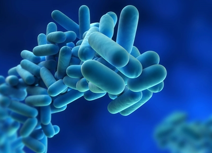Legionnaires' disease - what you need to know